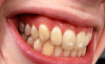 Hipomineralización de los dientes y síndrome MIH