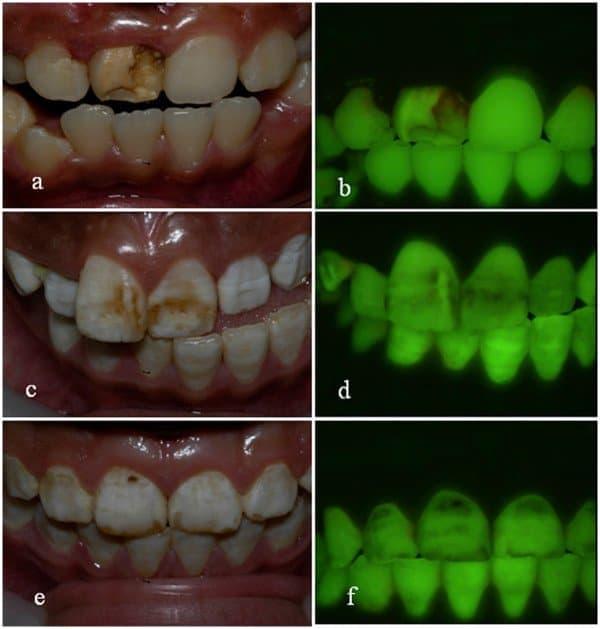 Dientes con laser fluorescencia