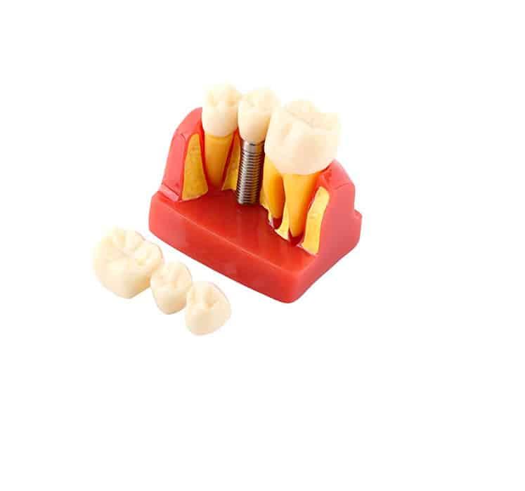 fantoma implantes dientes