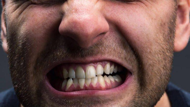 causas apretar dientes