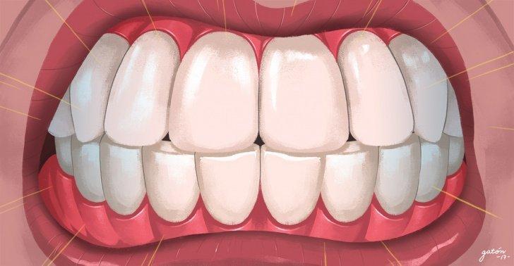 Bruxismo: ¿Puede la odontología curar el dolor de cabeza? Posiblemente, si es causado por el bruxismo…