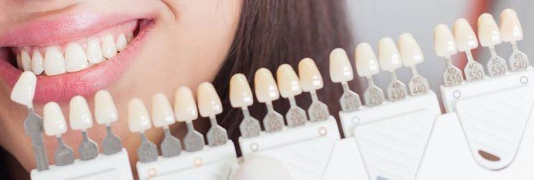 Todo lo que necesitas saber sobre el blanqueamiento dental antes de realizarte uno