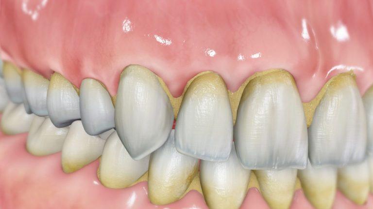 El sarro en los dientes: qué es, cómo eliminarlo y por qué debes prestar atención