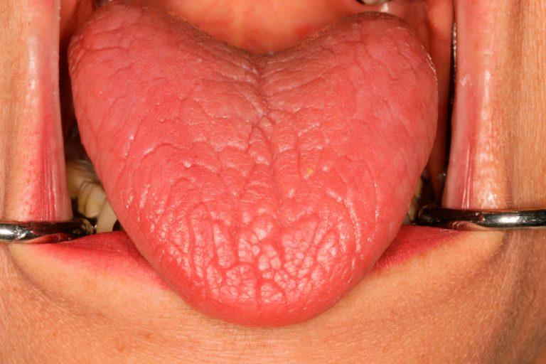 La  boca seca o xerostomía es un problema más grave de lo que piensas