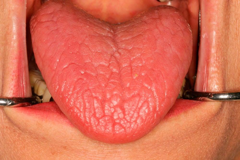 La boca seca o xerostomía es un problema más grave de lo que piensas 1