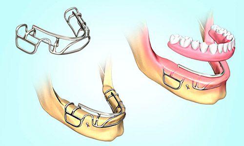 Todo lo que debes saber sobre los Implantes dentales 2