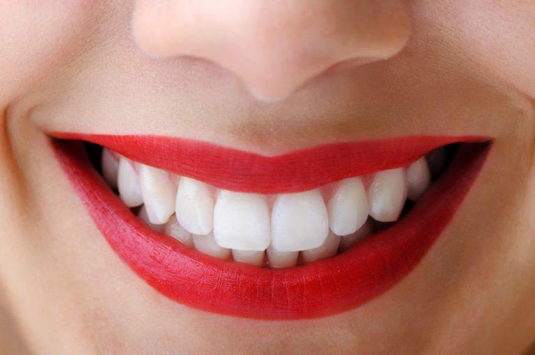 Los dientes no son blancos, o al menos ese no es su color natural