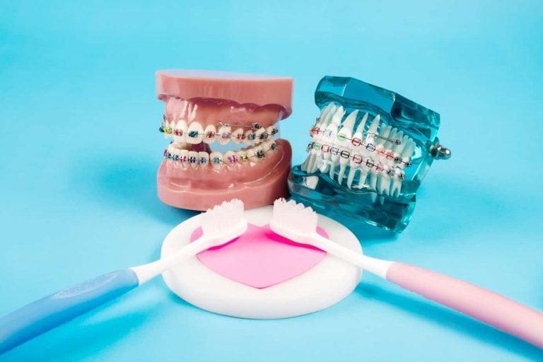 Seguro dental ¿Merecen la pena los seguros dentales?