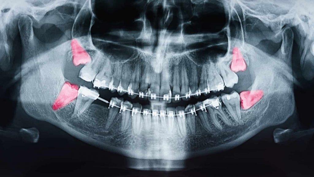 diente muelas del juicio