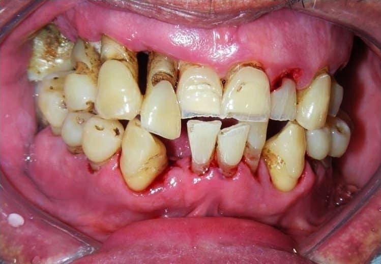Periodontitis: la sexta enfermedad más prevalente en el mundo